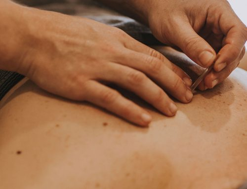 Dry needling and how it can assist with pain management